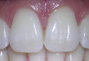 maxillary central incisors